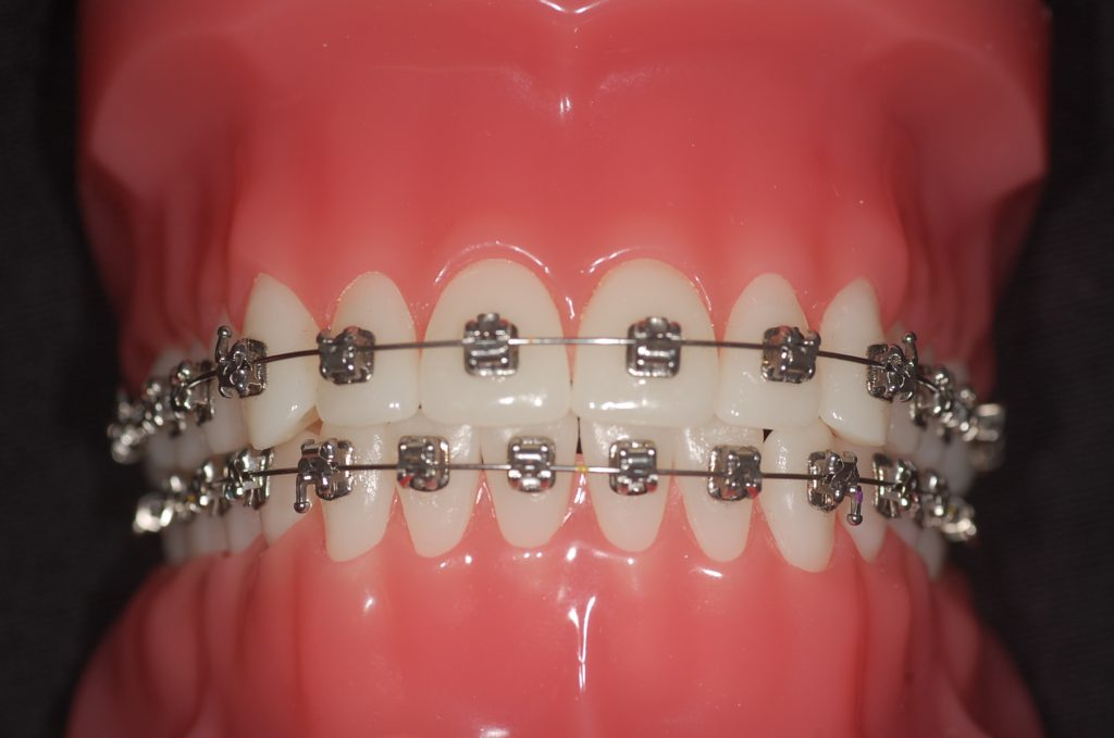 Orthodontiepraktijk Binda in Ede